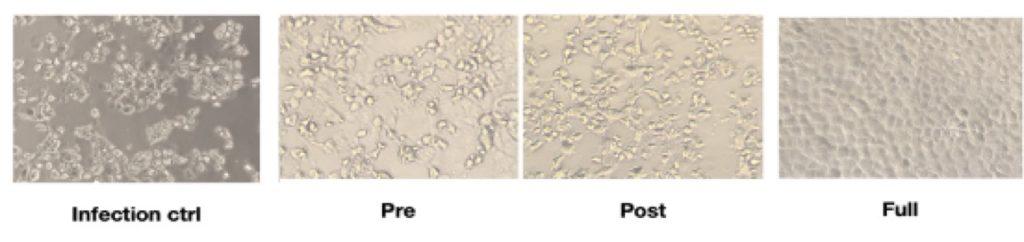plaquenil covid-19