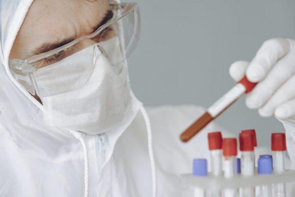 test sierologici coronavirus covid-19 plasma iperimmune