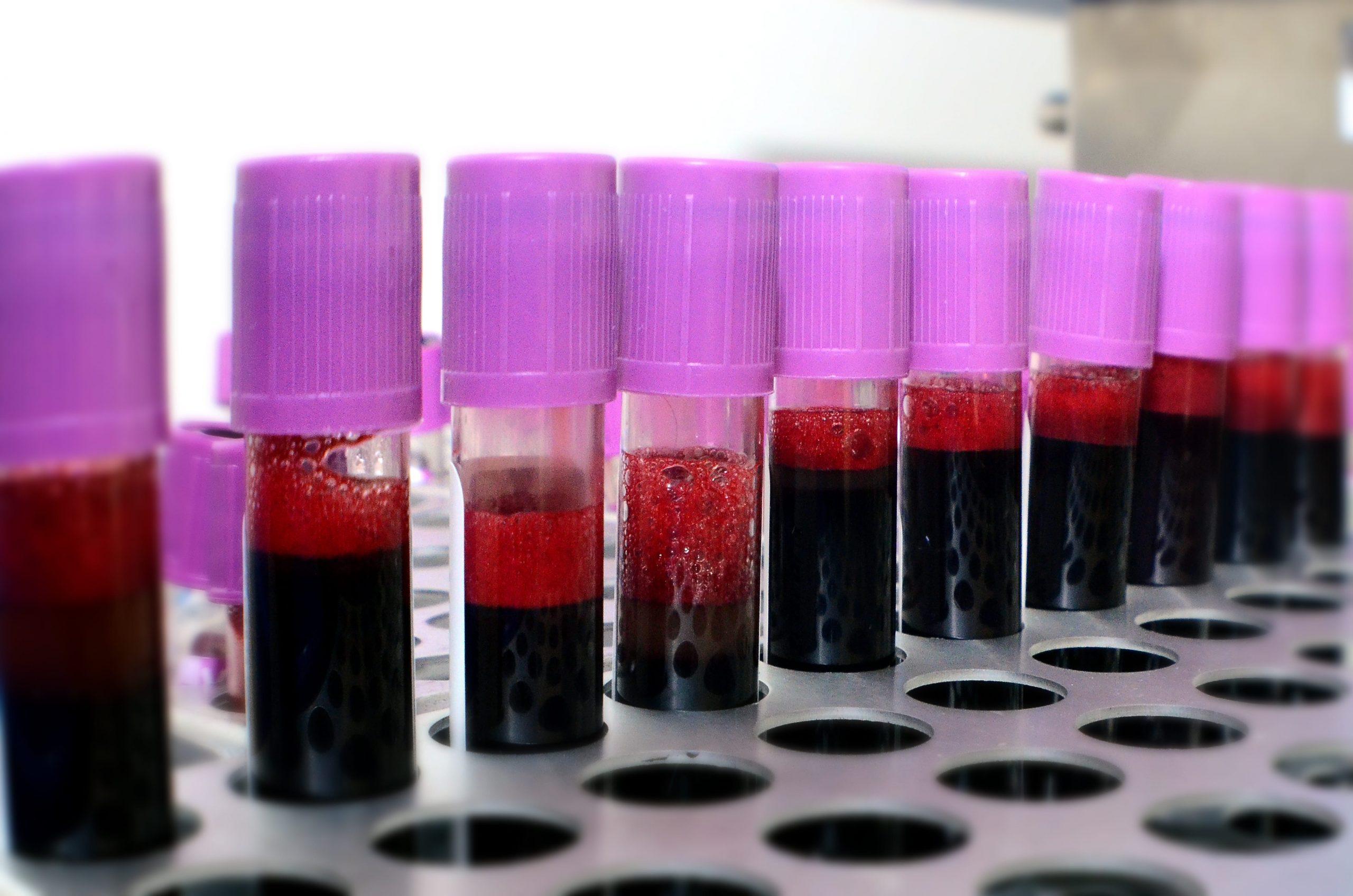 Plasma Diasorin Technogenetics Coronavirus Covid-19 Test Sierologici Governo